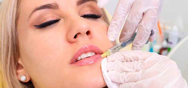Woman getting Juvederm filler injected into lips
