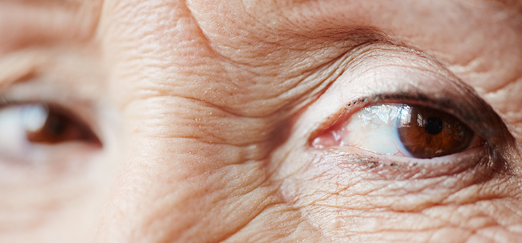 Extreme closeup of eyes with wrinkles and sagging eyelids