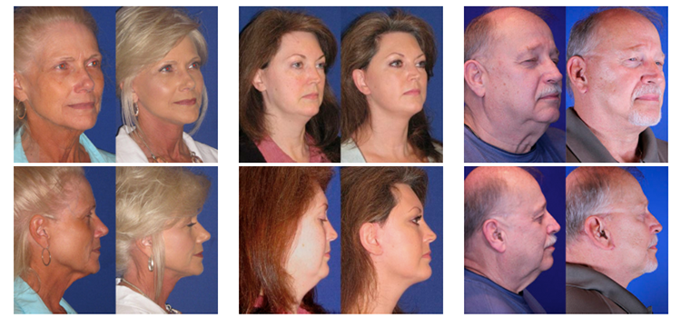 Collection of Reflection facelift before and after photos in Nashville