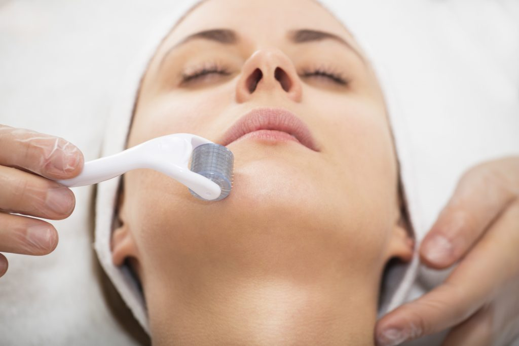 Microneedling roller on woman's chin in med spa